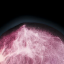 Рак молочной железы-0