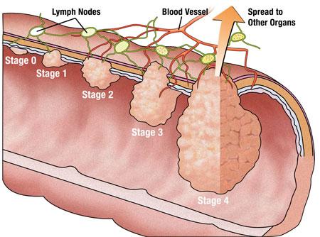 изображения рака прямой кишки: